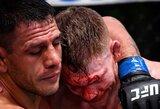 """""""UFC Fight Night 182"""": nesuprantamas vieno teisėjo rezultatas, dominavęs R.dos Anjos ir jo mestas iššūkis C.McGregorui"""