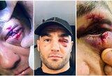 """Po nokautuojančio ruso smūgio E.Alvarezui plyšo abu akies vokai: """"Iš karto apakau"""""""