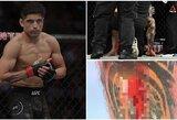 Skylė kojoje: UFC kovotojo trauma pašiurpino pasaulį