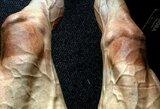 """Žiauri realybė: """"Tour de France"""" dviratininkas parodė, kaip atrodo jo kojos po 16 etapų"""