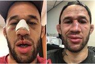 """UFC kovotojas paaiškino, kodėl nenumetė svorio: """"Praėjusioje kovoje patyriau galvos traumą ir pradėjau vartoti antidepresantus"""""""