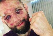 """""""UFC 257"""" turnyre kovojęs organizacijos veteranas deda tašką savo karjeroje: """"Kovoti netekus 40 proc. regėjimo – neįmanoma"""""""