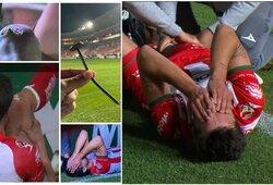 Kraupi trauma futbolo aikštėje: reklaminę juostą prilaikiusi vinis šiurpiai sužalojo žaidėjo koją