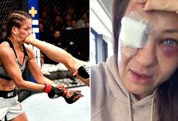 """Stiprų smūgį koja praleidusi ir pralaimėjimą patyrusi K.Kowalkiewicz: """"Pirmą kartą po kovos aš negaliu pasakyti, kad man viskas gerai"""""""