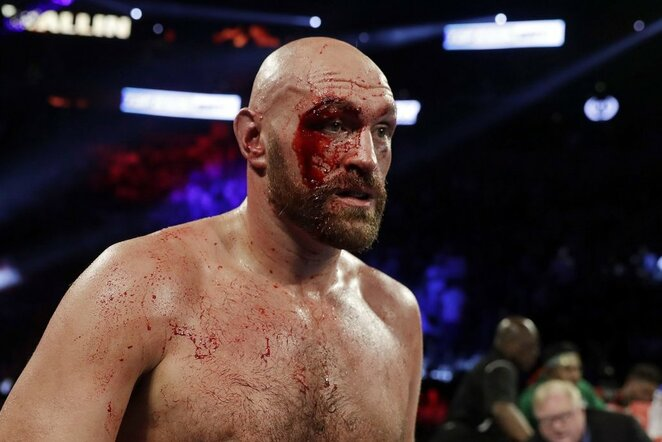 Tysonas Fury   Scanpix nuotr.