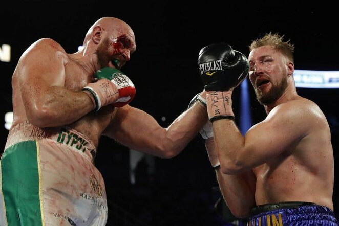 Tysonas Fury ir Otto Wallinas | Scanpix nuotr.