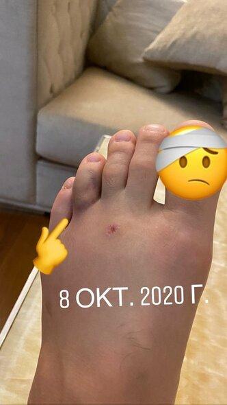 Chabibo Nurmagomedovo pėda | Instagram.com nuotr